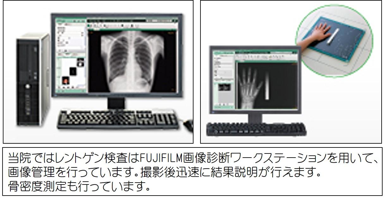 レントゲン検査①